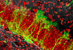 Int Immunopharmacol:Crocin通过调节巨噬细胞极化,抑制钛粒子诱导的炎症,促进种植体周围炎的再成骨