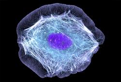 Blood:采用R-CHOP治療的原發性縱隔大B細胞淋巴瘤(PMBCL) 的預后