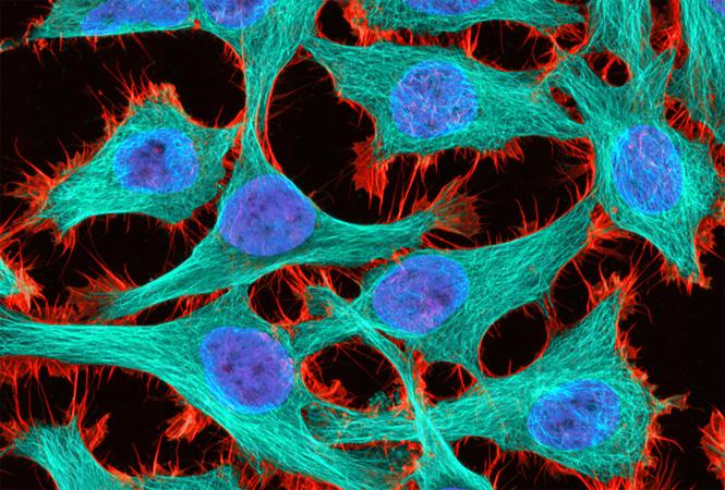 百济神州宣布,联合化疗用于非鳞状非小细胞肺癌患者,3期试验达到无进展生存的主要终点