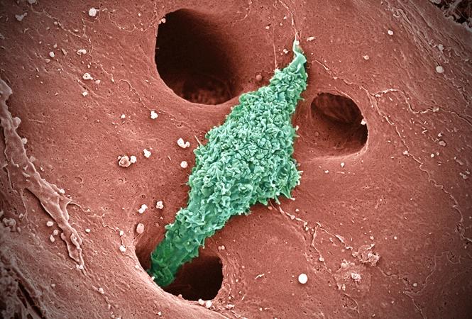 NEJM:美國艱難梭菌感染及相關住院負擔研究