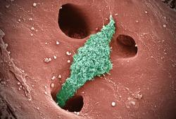 Helicobacter:青霉素过敏的幽门螺杆菌感染患者的药敏指导治疗