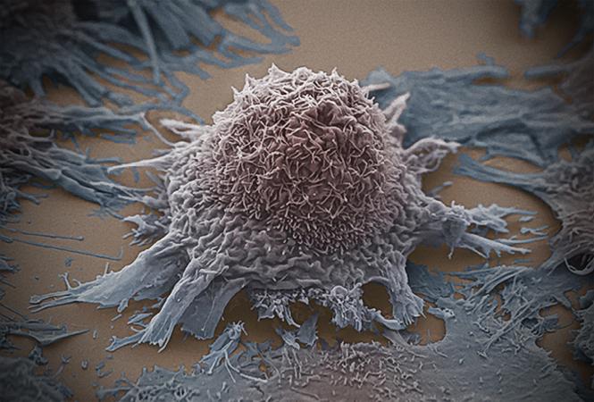 BMJ:一文盘点营养、饮食与9种癌症的风险