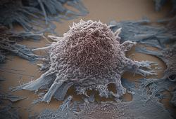 阿司匹林或将癌症患者的死亡风险降低 20%