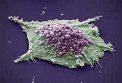 百济神州的BTK抑制剂Brukinsa,在欧洲接受审查用于治疗华氏巨球蛋白血症