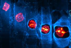 Blood:MYC诱导性AML的发生需要IL3和GM-CSF的持续共刺激