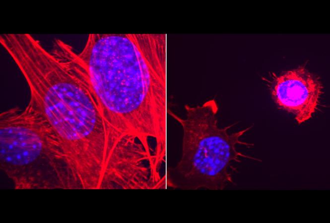 歐盟批準武田的TKI抑制劑ALUNBRIG,用作ALK陽性非小細胞肺癌患者的一線治療藥物