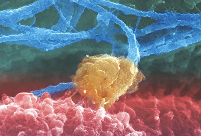 肺癌免疫靶向治疗时代下,放疗基石地位难以撼动,精准放疗日益重要