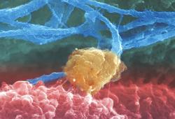 TCT 2020丨比伐芦定与肝素在患者水平的荟萃分析引发了一场争论