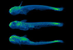 Biol Trace Elem Res:硒补充剂可影响体外受精不孕女性的临床症状