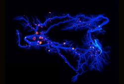 J Immunother Cancer:肿瘤浸润免疫细胞的动态变化可预测患者对新辅助化疗的反应