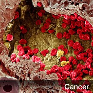 亞盛藥業的Bcl-2抑制劑APG-2575用于慢性淋巴細胞白血病或小淋巴細胞淋巴瘤的Ib/II期臨床,獲得NMPA的批準