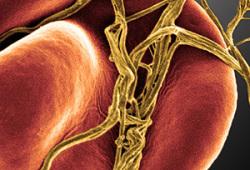Blood:血浆生长分化因子15水平与静脉血栓栓塞风险的关系