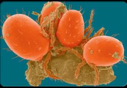 """AACR 2020:<font color=""""red"""">PD</font><font color=""""red"""">-L1</font><font color=""""red"""">单抗</font><font color=""""red"""">Tecentriq</font>联合卡铂和依托泊苷,可提高小细胞肺癌SCLC生存率"""
