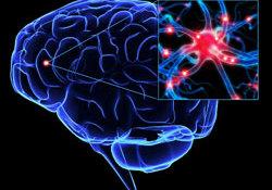 "Circulation:减少微动脉的过渡肌化可预防自发性深部<font color=""red"">脑出血</font>"