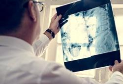 Radiology:从十年美国患者的影像学检查辐射量变化中,我们能获得怎样的启发?