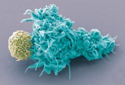首款靶向BCMA的抗體藥物偶聯物Blenrep獲FDA加速批準:治療復發或難治性多發性骨髓瘤