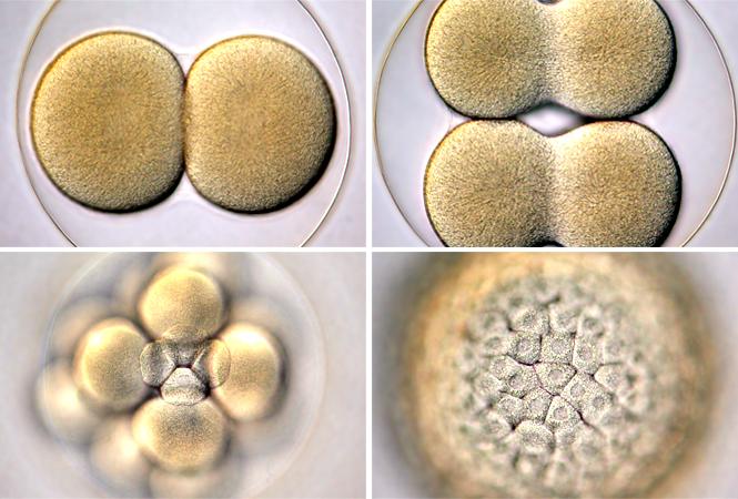 Cell Death Dis:TNFAIP8调节细胞自噬、脂肪变性并促进肝癌细胞增殖