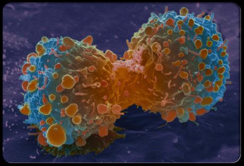 """谈乳腺癌治疗相关的""""骨安全""""管理"""
