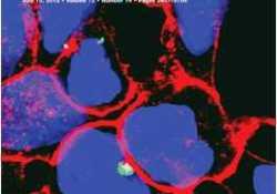 Cancer Res:揭示抑制MET信号路径可有效抑制胶质母细胞瘤的发展
