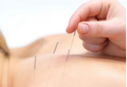AIM:亚力山大健身技术或针灸可显著改善慢性颈痛