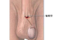 输精管切除术-手术过程(图片)