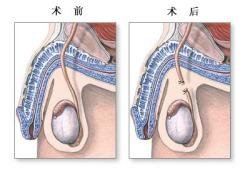 输精管切除术-手术预后(图片)