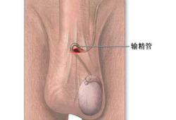 输精管切除术-手术切口(图片)