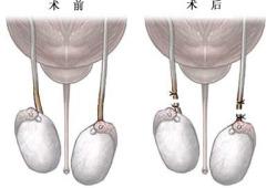 输精管切除术-术前、后(图片)