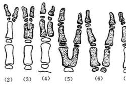 多指(趾)切除术