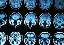 J Alzheimers Dis:新发现!从骨丧失可预测阿尔茨海默病的发生