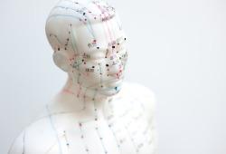 Med J Australia:研究证明针灸可以镇痛,会逐渐取代镇痛药吗?
