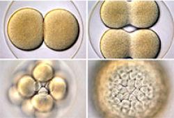 Redox Biol:BNIP3或可作为提高人类间充质干细胞治疗潜力的新靶点