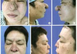 手术治疗巨大鼻赘一例