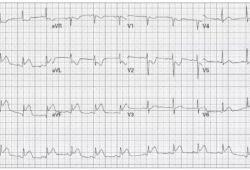 病例分享:右室心肌梗死的心电图表现