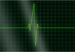 Sci Adv:只用石墨烯和光控制心脏,实现不同跳动频率!