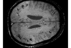 Neurology:危重病相关脑多发微出血