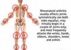"Arthritis Rheumatol:<font color=""red"">类风湿</font>性关节炎中持续性克隆T-LGL扩增的患病率及特征"