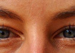 Ophthalmic Plast Reconstr Surg:不同治疗措施对失明患者疼痛眼睛的疗效比较