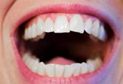 乳牙过早缺失需谨慎