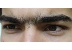 Invest Ophthalmol Vis Sci:Caspase-2介导钝性眼部损伤后特定部位的视网膜神经节细胞死亡