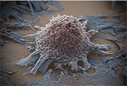 宫颈小细胞癌骨转移1 例