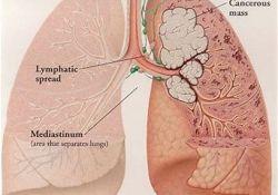 "2018年WCLC:<font color=""red"">Atezolizumab</font>治疗IV期非鳞状非小细胞肺癌的有效性和安全性"