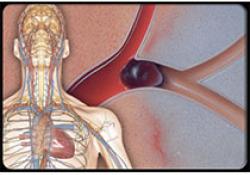 """<font color=""""red"""">血液</font><font color=""""red"""">稀释</font><font color=""""red"""">剂</font>预防中心静脉置管的癌症患者血栓形成"""