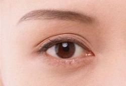 JAHA:芬蘭研究稱:從小保持理想心血管健康狀況,長大后眼睛血管更漂亮