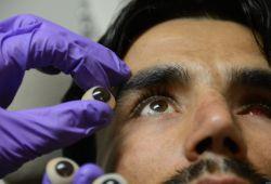 Nat Biomed Eng:在人體內首次眼內機器人手術的安全性和可行性研究報告