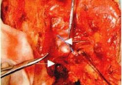 """颈清术中见<font color=""""red"""">PICC</font>管异位于颈内静脉1例"""