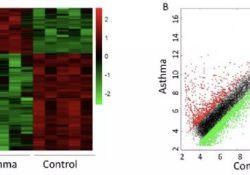 "BBRC:<font color=""red"">支气管</font>哮喘患者外周血CD4+T 细胞中差异性表达<font color=""red"">的</font>长链<font color=""red"">非</font><font color=""red"">编码</font><font color=""red"">RNA</font>与肺<font color=""red"">功能</font>等指标相关,有望成为新<font color=""red"">的</font><font color=""red"">生物</font>标志物"