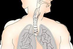 PLOS ONE:维生素A预防极低出生体重儿的支气管肺发育不良