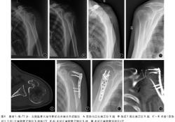 肱骨大结节骨折合并肩关节后脱位二例