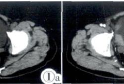 膀胱弥漫大B细胞淋巴瘤侵及回肠1例